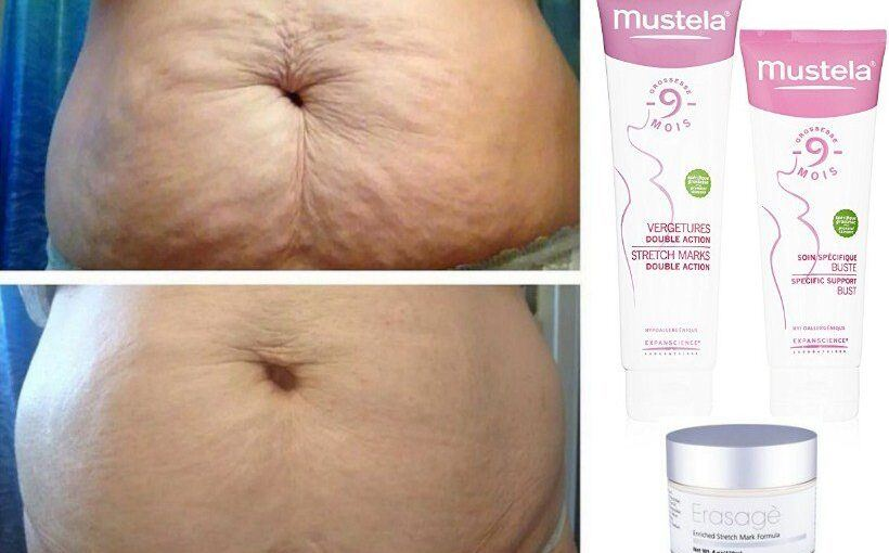 Best Stretch Mark Cream