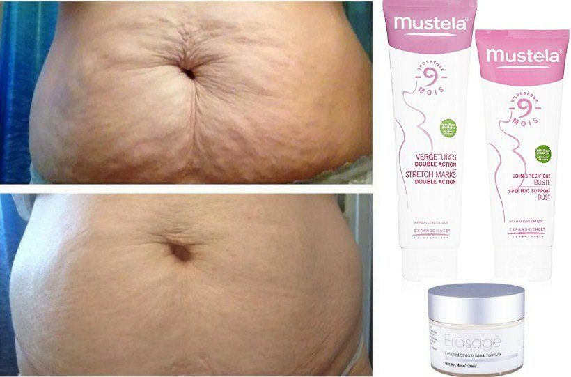 Best Stretch Mark Creams Review And Buying Guide Updated 2020